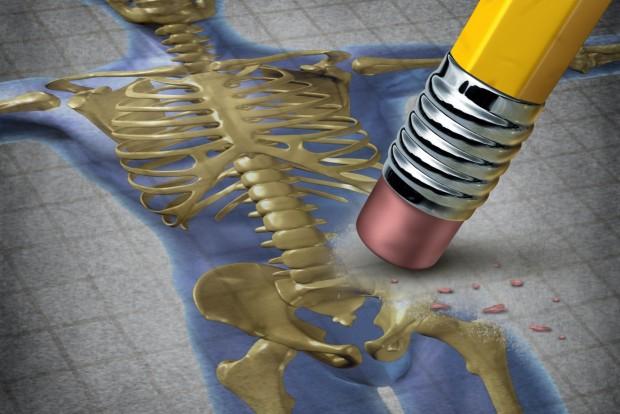 ostheoporosis1